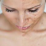 manchas rostro